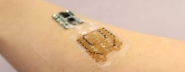 Smart bandages heal wounds