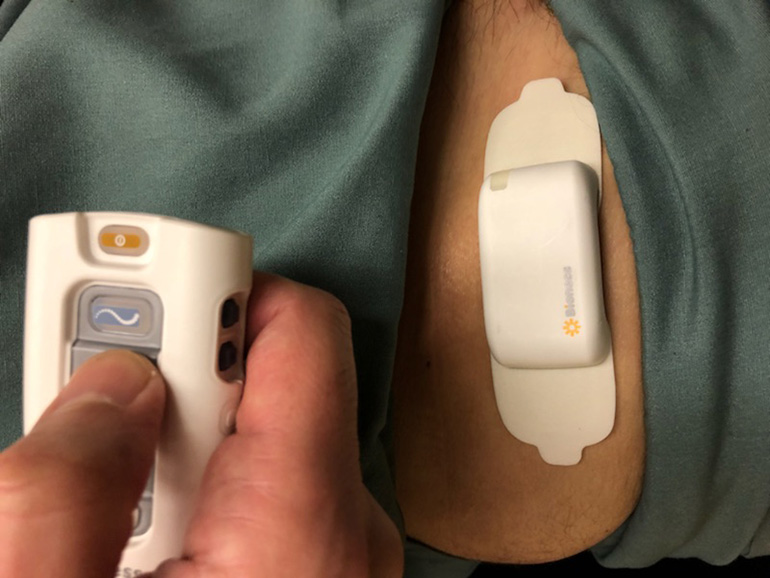 Stimrouter implanted patient