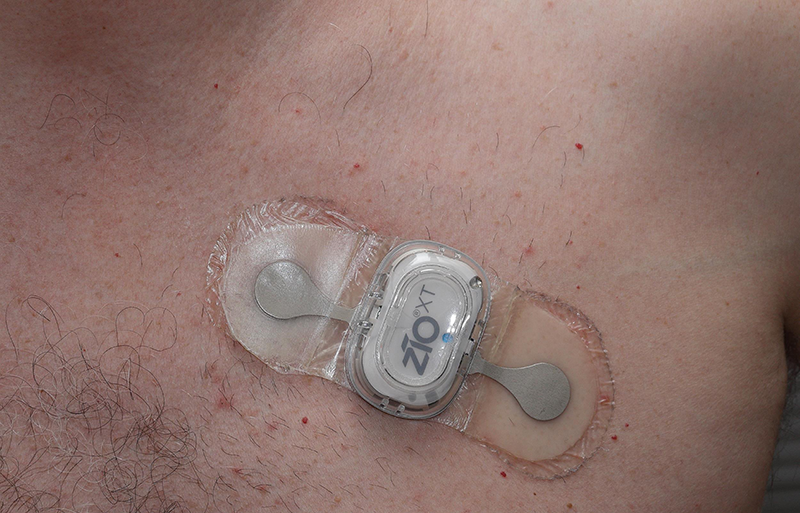 Wearable ECG Monitoring Patch Detects AFib | Wearable