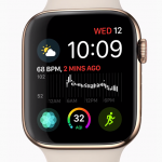 Doctors should not dismiss Apple Watch ECG