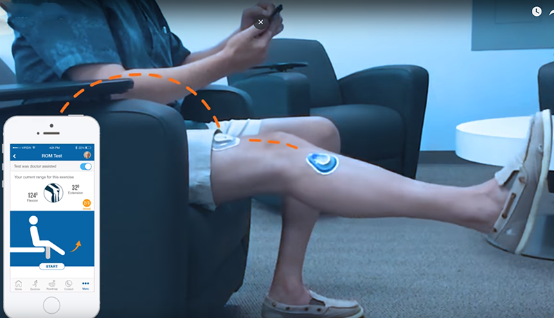TracPatch orthopedic wearable