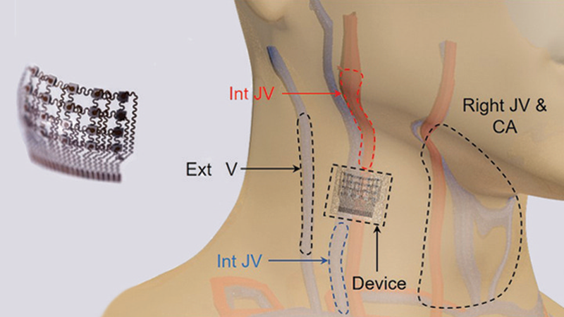 Wearable Ultrasound Patch Monitors Blood Pressure in Deep Arteries