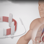 Wirelessly Powered Heart Pump