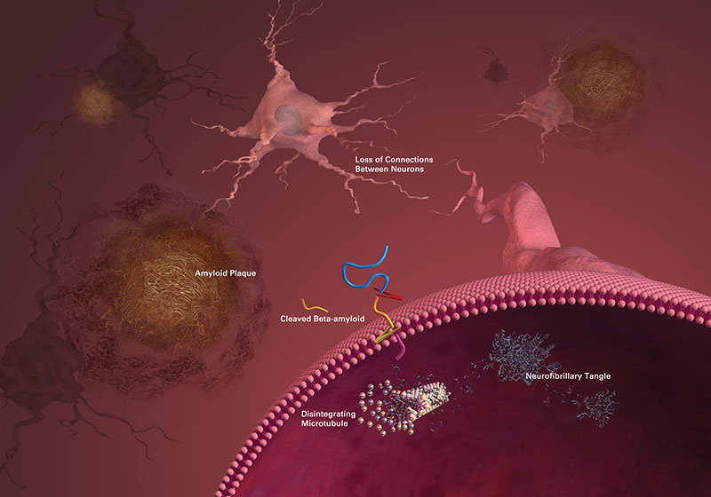 AI tool for Alzheimers research