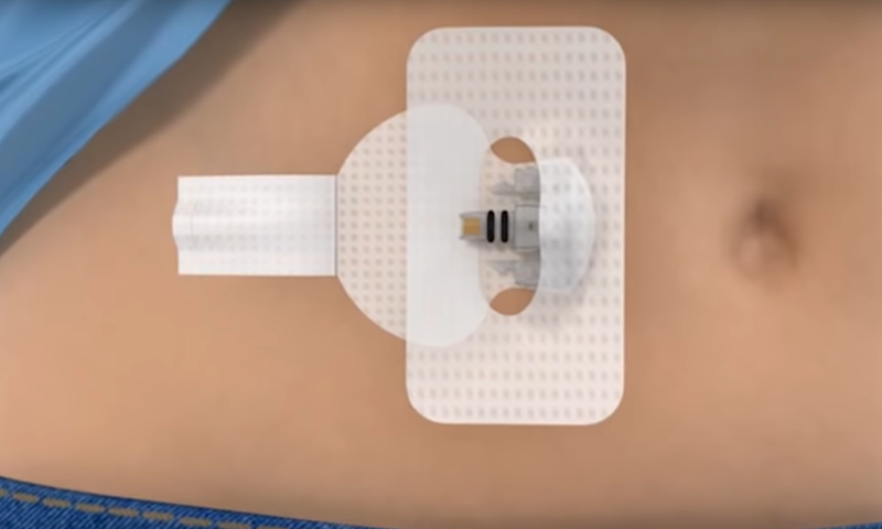 Diagnostic Wearable Medical Devices