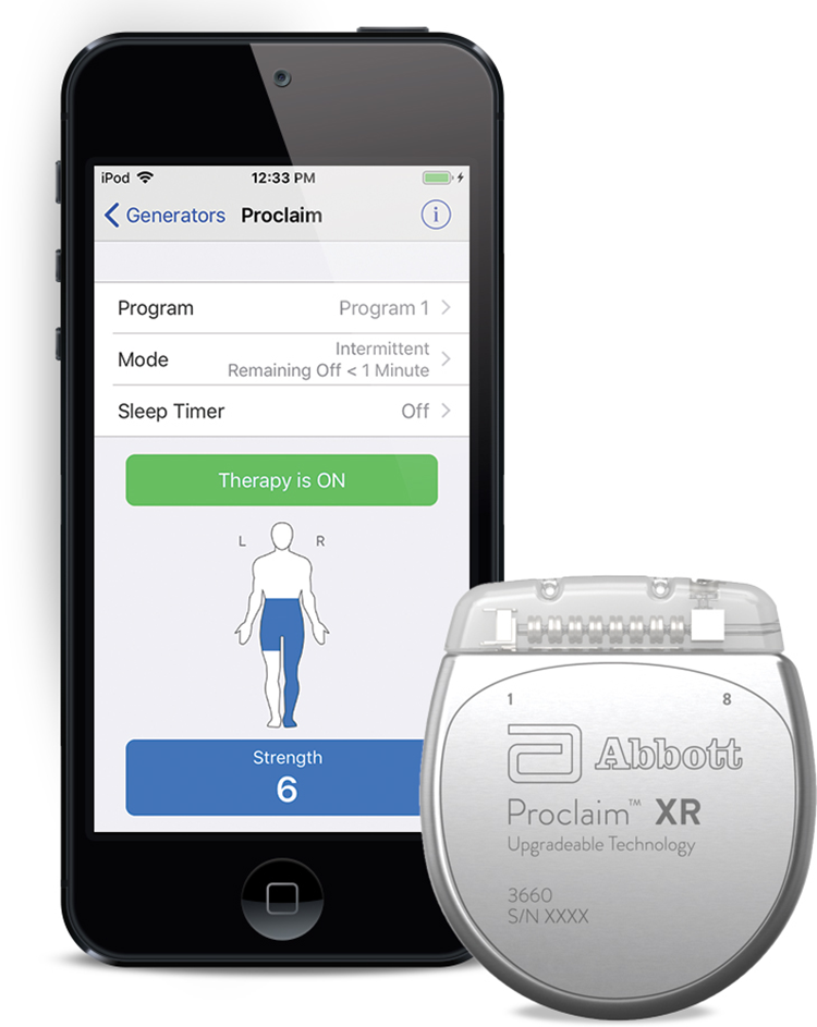 A mobile app and a wearable