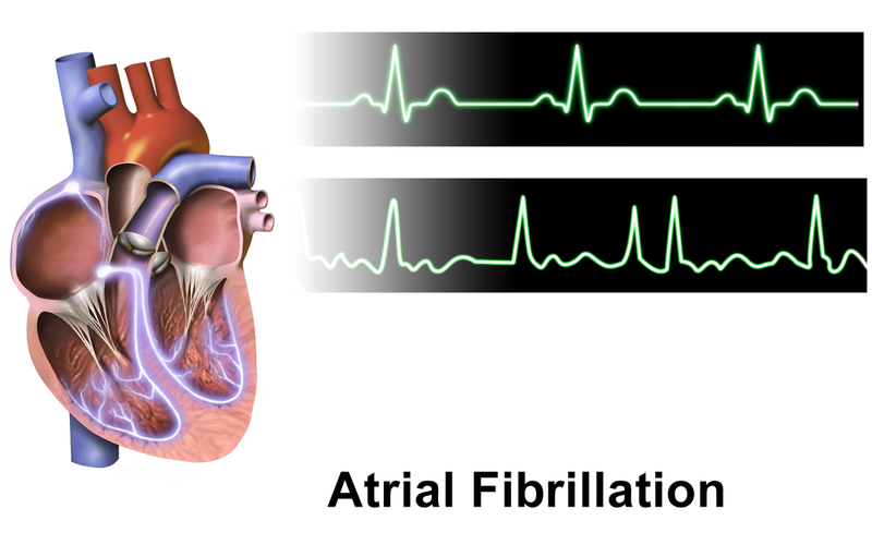 Image showing Atrial Fibrillation
