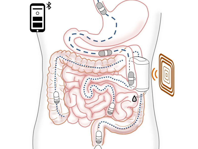 Ingestible Robot That Delivers Insulin
