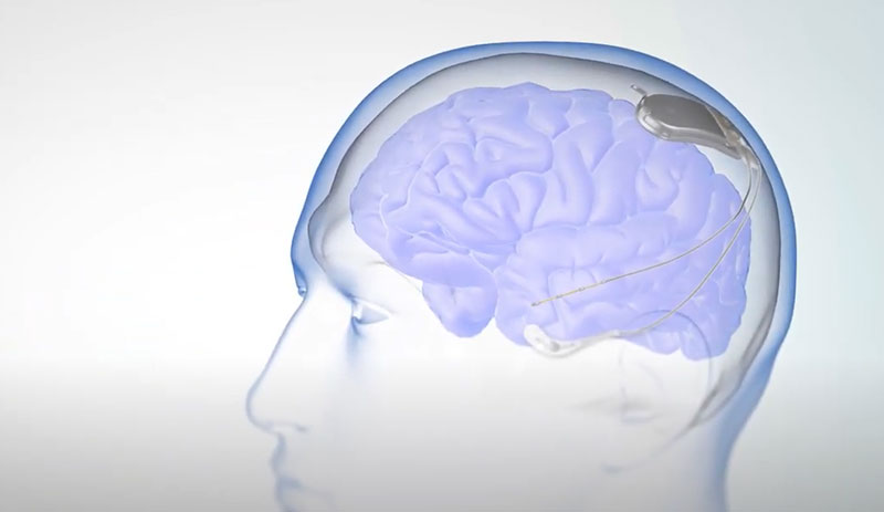 NeuroPace RNS System for Epilepsy Treatment